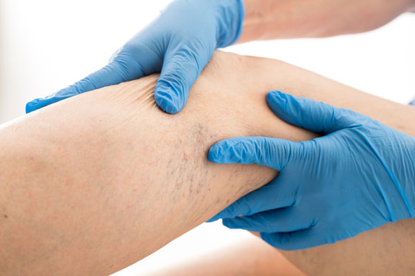Laser Aesthetic Services In Pensacola East Hill Medical Group