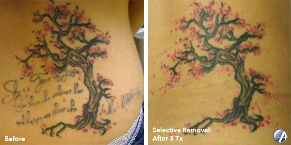 image of laser tattoo removal on side