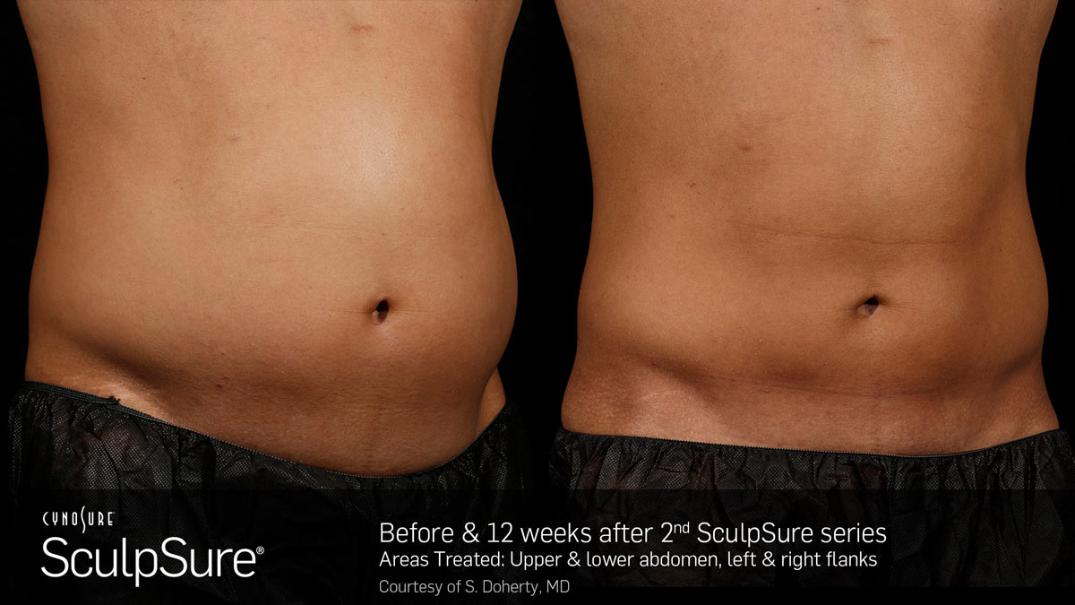 SculpSure Before2  After