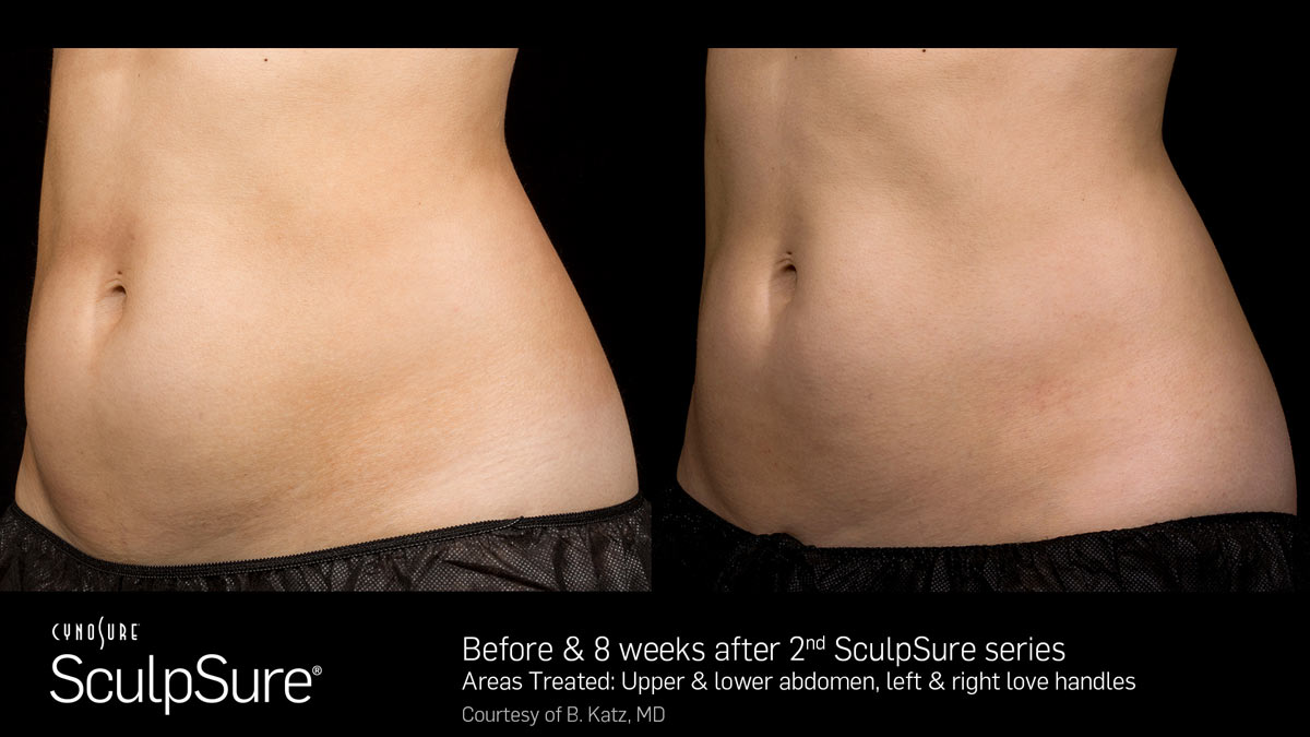 SculpSure Before3  After