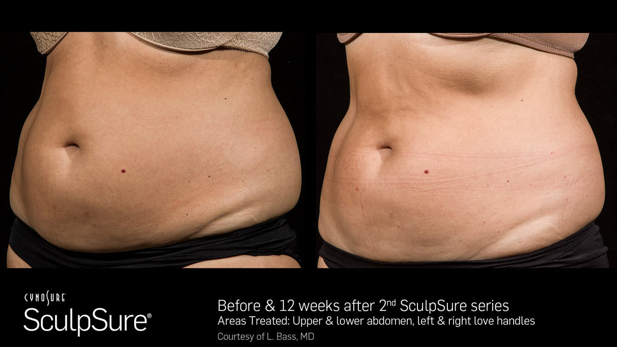 SculpSure Before4  After